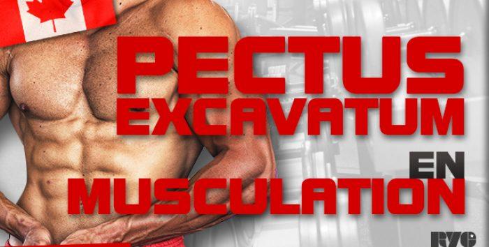 Que faire avec un Pectus Excavatum en musculation ?
